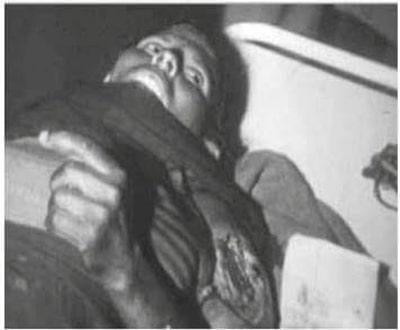 Heridos en los bombardeos de Um Draiga